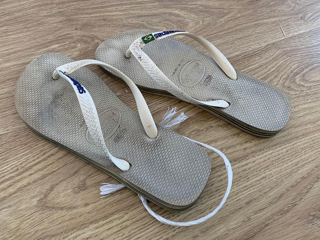 a9e38c0e7 Flip flops. One day you can t feel your leg. One day a leg is twice the size  of the other one. One day your kidneys have stopped working.