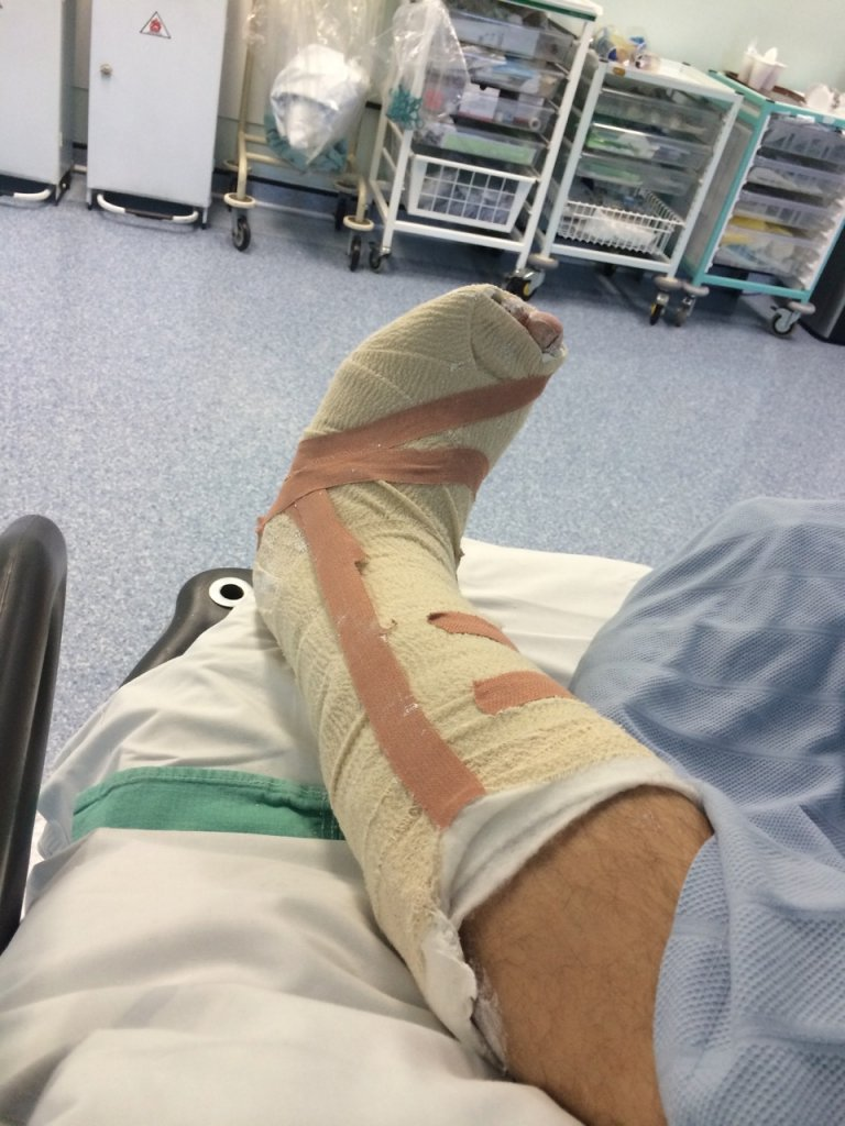 Leg in plaster cast