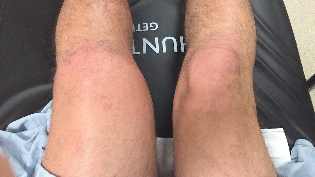 DVT Leg