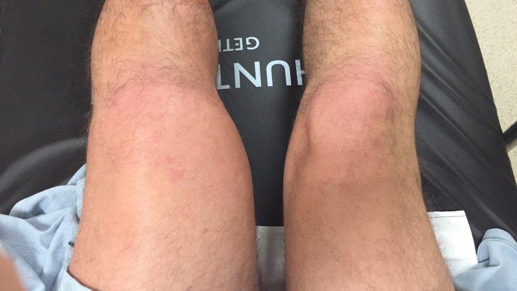 Fluid in my leg
