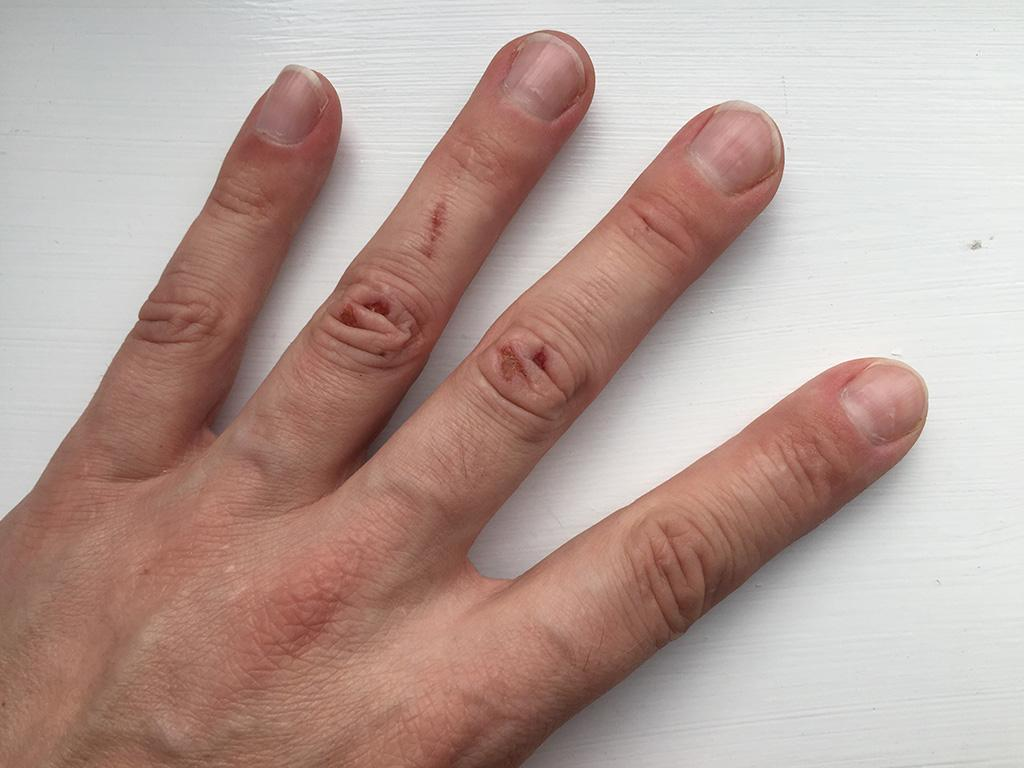 Grazed knuckles