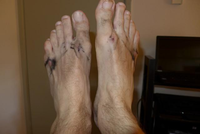 25,000 Steps in Flip Flops